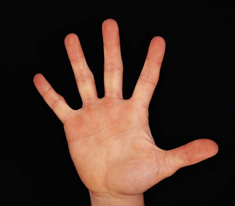 Study Finds: If Your Hand is Bigger than Your Face You Need Surgery
